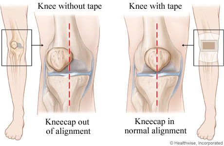 McConnel Tape to relieve knee pain